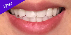 Teeth After Using BURST Oral Care
