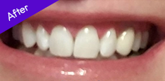 White Teeth After using Toothbrush