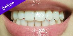 Teeth Before Using BURST Oral Care
