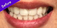 Teeth before using Toothbrush