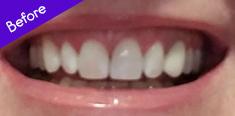 Teeth Before Using BURST Electric Toothbrush
