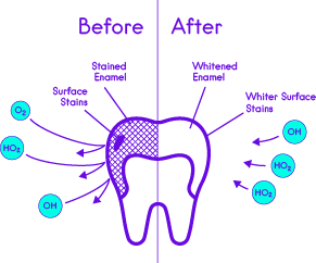 Whitening Strips Action on Teeth